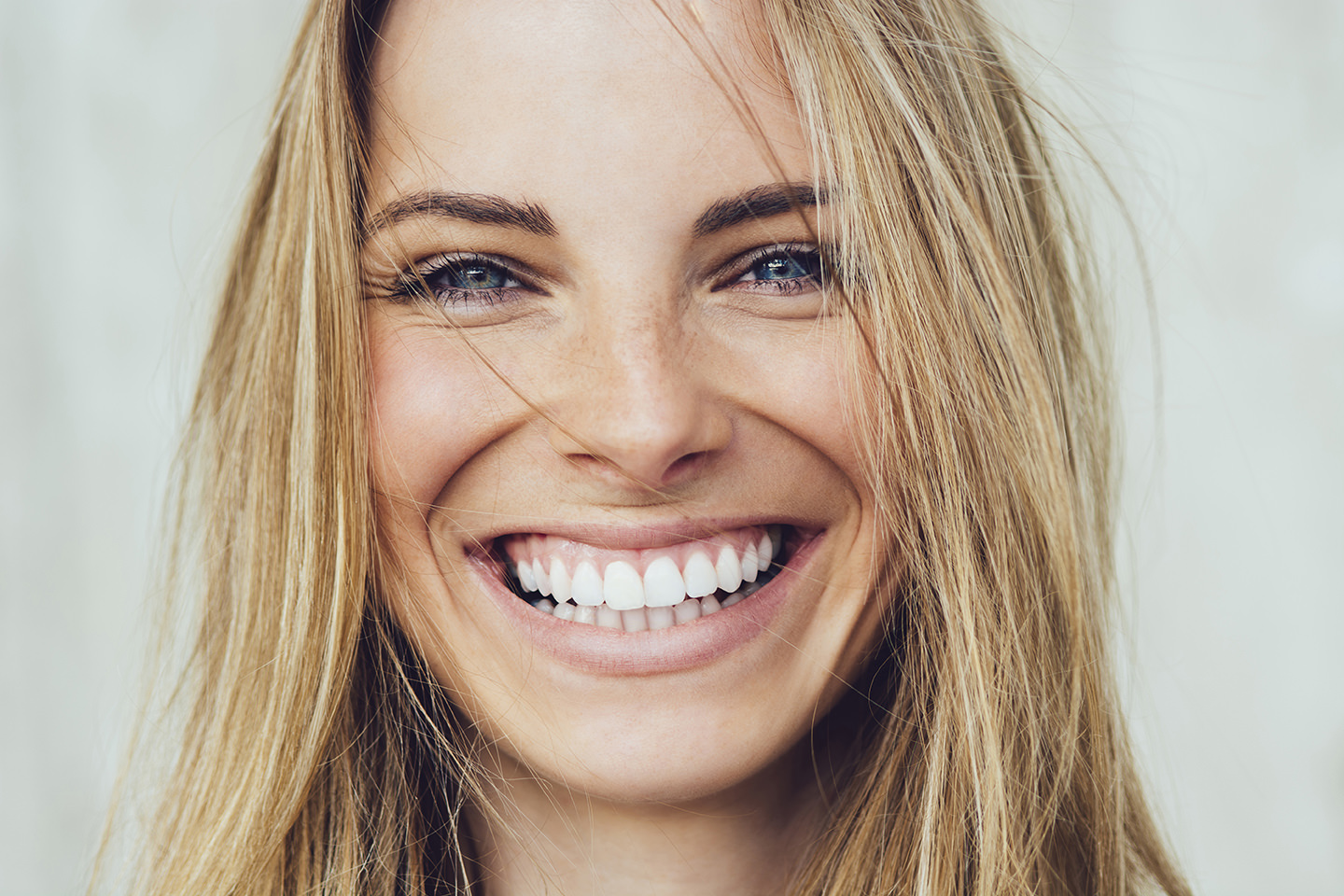 wedding smile at the grove dental rouse hill